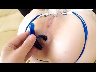 Double view true anal