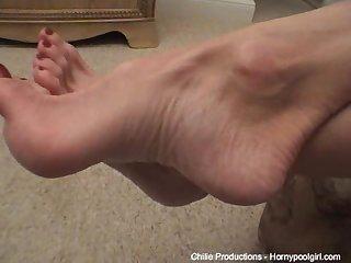 Super high arched feet